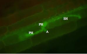 Figure 3: hemibiotrophic infection by <i>C. graminicola</i>.